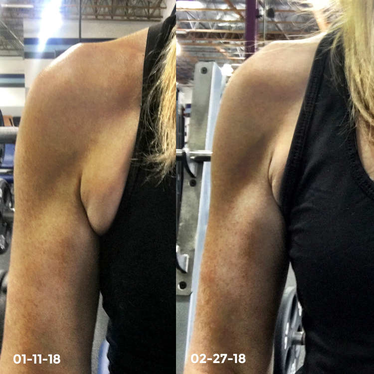 Armpit Fat Loss Before and After